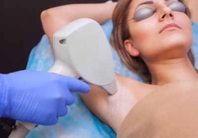 What Are The Benefits of Laser Hair Removal Treatment?